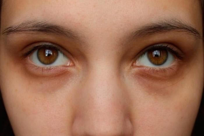 Как убрать синяки под глазами в фотошопе5