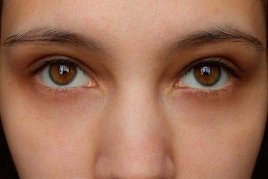Как убрать синяки под глазами в фотошопе8