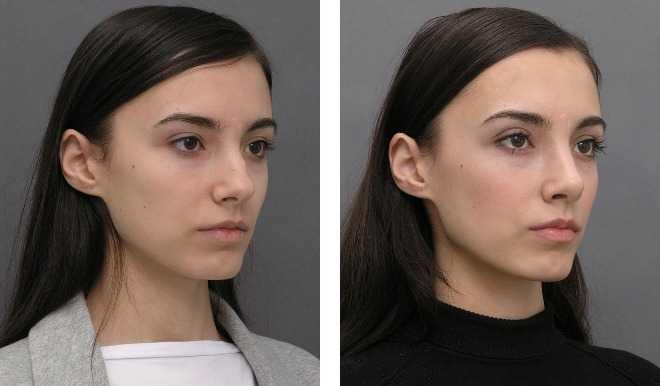 Типы лица у женщин-21